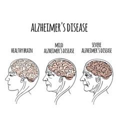 Dementia alzheimer disease medicine vector