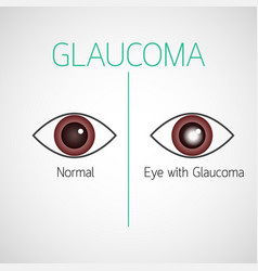 glaucoma icon vector image