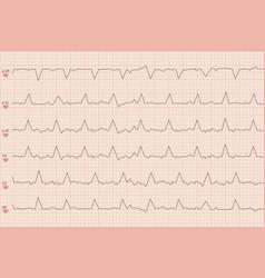 Arrhythmia electrocardiogram sheet vector