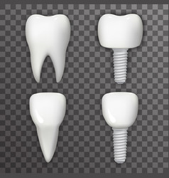 dental implant realistic 3d tooth poster vector image vector image