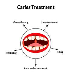 caries treatment bad breath halitosis the vector image