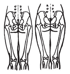 position of the pelvic and thigh bones in the vector image