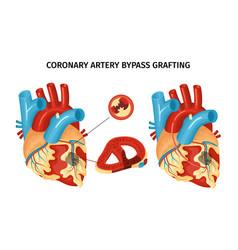 Heart anatomy bypass vector