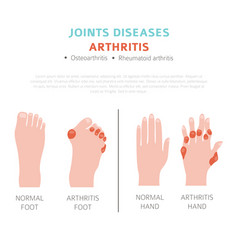 Joints diseases arthritis symptoms treatment icon vector