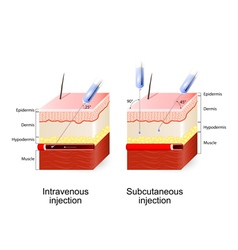 Intravenous therapy and Subcutaneous injection vector