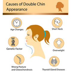 Causes of double chin vector