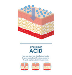 Hyaluronic acid filler injection infographic vector