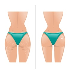 cellulite and healthy skin vector image