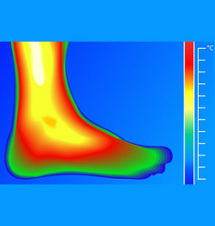 Human leg thermal imager with temperature scale vector