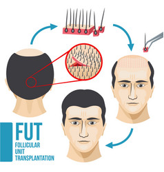 male hair loss treatment medical vector image