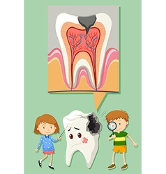 Boy and girl with tooth decay diagram vector