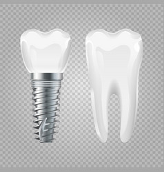 Dental implant realistic healthy tooth and vector