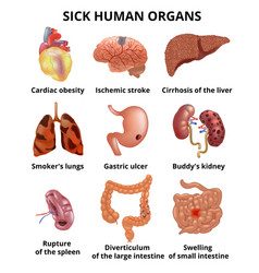 Realistic sick human organs set anatomy with text vector