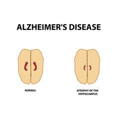 Atrophy hippocampus dementia alzheimers disease vector
