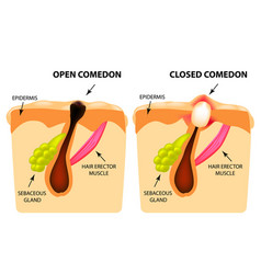 Types of acne open comedones closed comedones vector