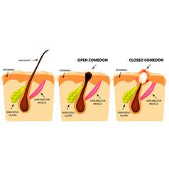 Types of acne open comedones closed comedones vector