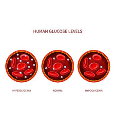 Human glucose levels hyperglycemia normal vector