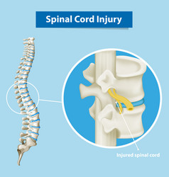 Diagram showing spinal cord injury vector