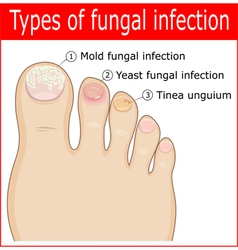 Types of fungal infections vector
