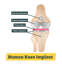 human knee implant vector image