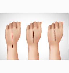 Surgical stitching hands composition vector