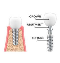 Dental implant structure realistic schematic vector