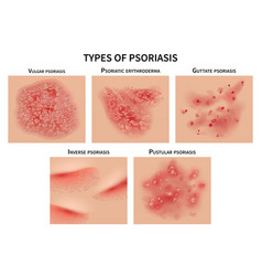 Psoriasis types skin hives derma diseases vector