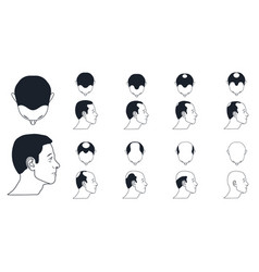 male baldness types vector image