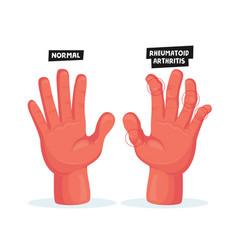 Normal and sick hands with rheumatoid arthritis vector