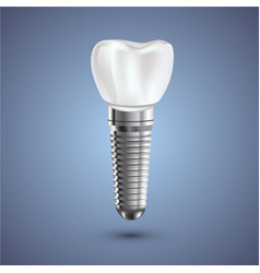 Dental implant realistic anatomy vector