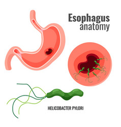 Esophagus anatomy and helicobacter pylori medical vector