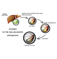 Pathogenesis of gallstones vector