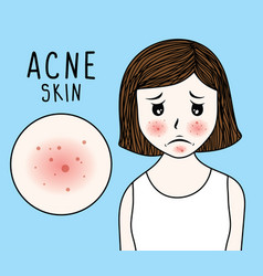 woman face acne skin on blue b vector image