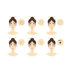woman with skin problem acne vector image