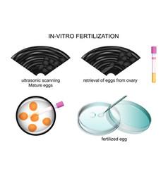 In vitro fertilization vector