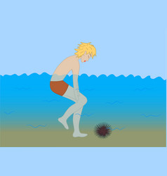 Man accidentally stepped on the sea urchin vector