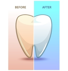 Cartoon teeth before and after whitening vector