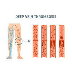 cartoon deep vein thrombosis infographics card vector image