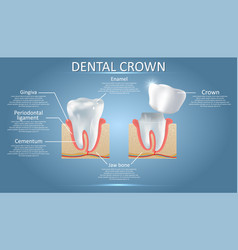 Human tooth and dental crown educational vector