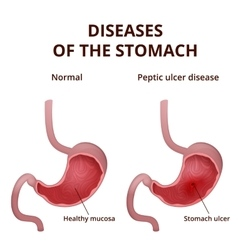 Anatomy of the human healthy and unhealthy stomach vector image vector image