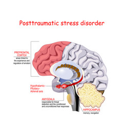 Posttraumatic stress disorder vector
