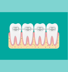 Teeth braces flat vector