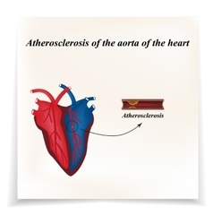 Atherosclerosis of the arteries of the heart vector image