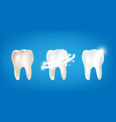 collection of dirty clean and strong white tooth vector image
