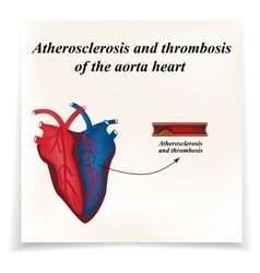Atherosclerosis and thrombosis of arteries of the vector