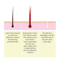 Laser hair removal description procedure vector