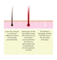 laser hair removal description procedure vector image