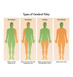 Types cerebral palsy vector