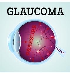 Healthy Eye Glaucoma vector image vector image