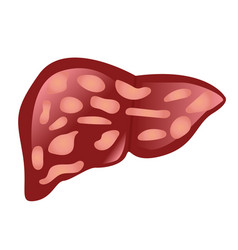 liver affected by cirrhosis vector image